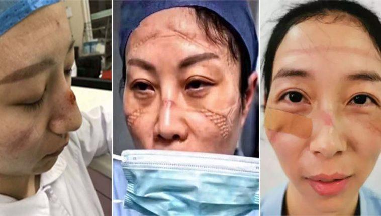 médicos com rostos marcados por máscaras