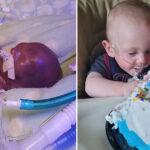 Bebê mais prematuro do mundo