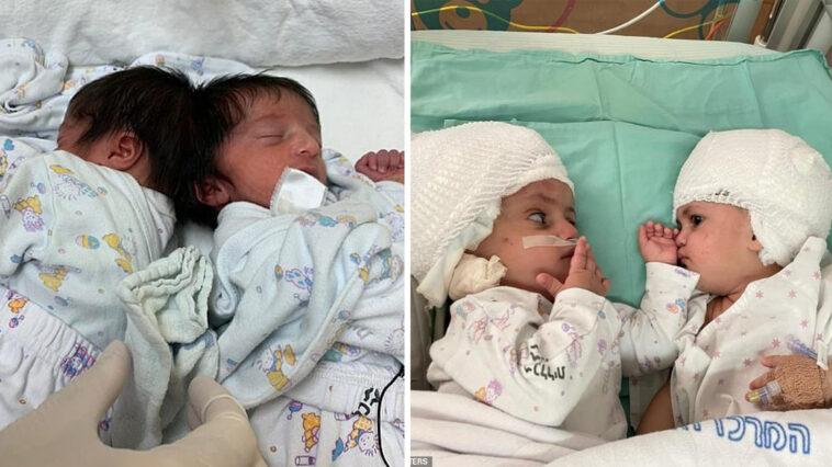 Gêmeas siamesas se olham pela primeira vez