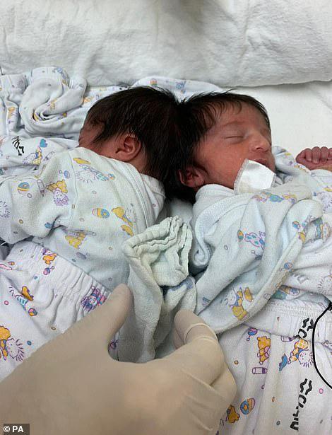 Gêmeas siamesas se olham pela primeira vez após cirurgia que as separou