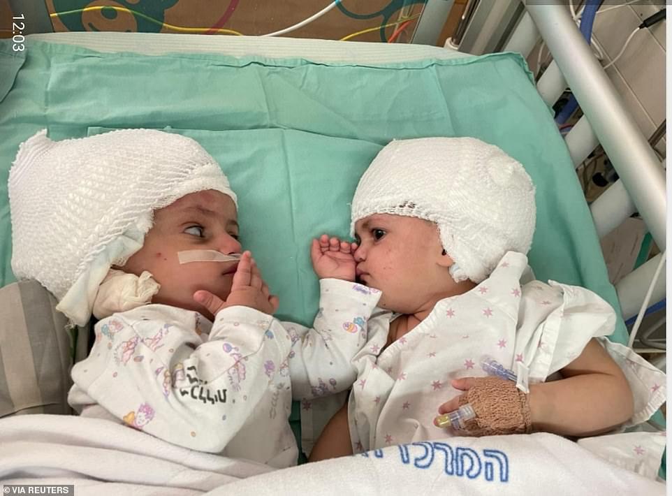 Gêmeas siamesas se olham